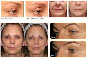 Antes y después del tratamiento con Symmed