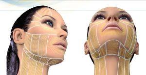 HIFU-face-neck