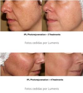 Antes y después de un tratamiento con IPL Quantum